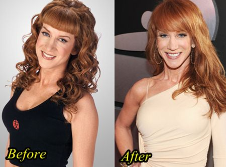 Kathy Griffin Plastic surgery Liposuction