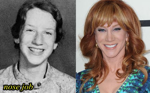 Kathy Griffin Nose Job