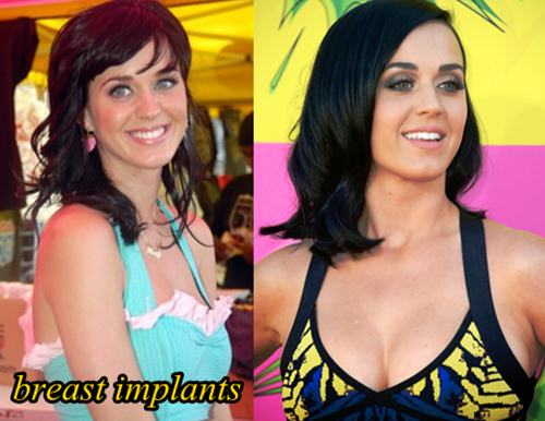 Katy Perry Plastic Surgery Breast Implants