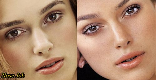 Keira Knightley Plastic Surgery Before and After Nose Job