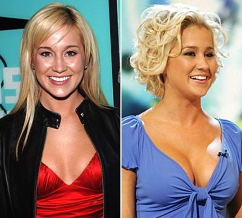 Kellie Pickler Plastic Surgery Before After Breast Implants