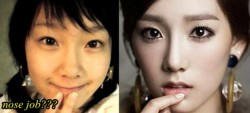 Kim Taeyeon SNSD Nose Job