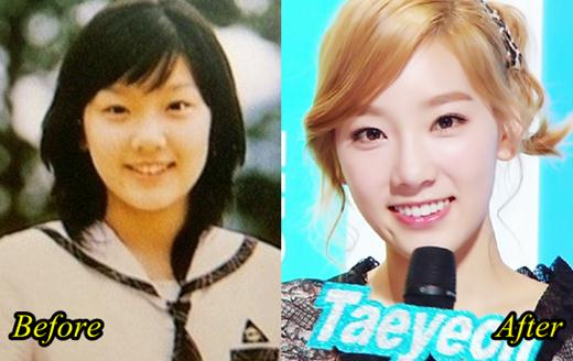 Kim Taeyeon SNSD Plastic Surgery Before and After