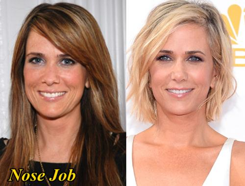 Kristen Wiig Plastic Surgery Before and After Nose Job