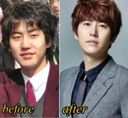Kyuhyun Plastic Surgery Before After