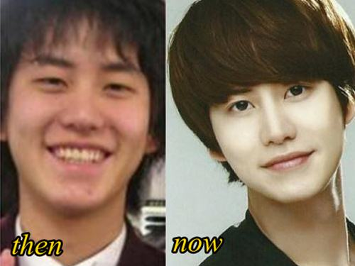kyuhyun plastic surgery before and after plastic surgery