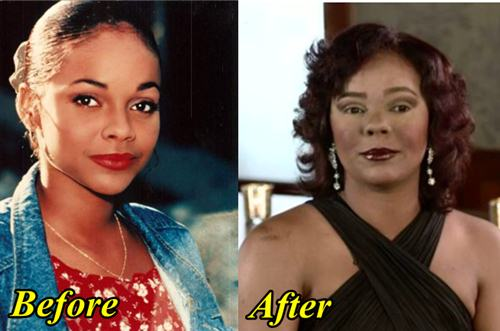Lark Voorhies Plastic Surgery Before and After Picture