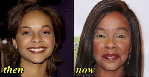 Lark Voorhies Plastic Surgery Gone Wrong