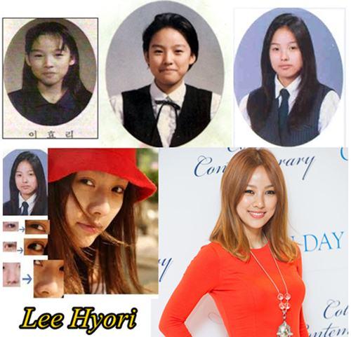 Lee Hyori Plastic Surgery