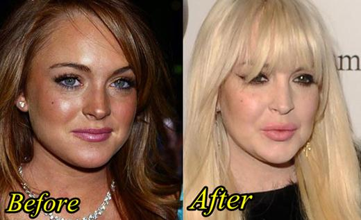 Lindsay Lohan Plastic Surgery Before and After Picture