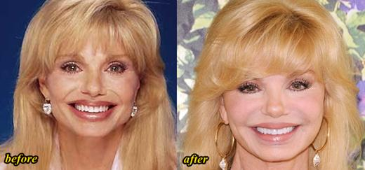 Loni Anderson Plastic Surgery Before and After