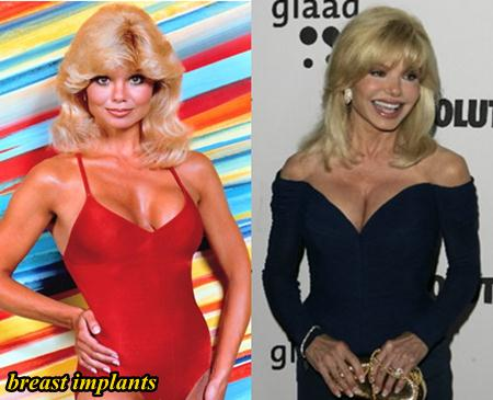 Loni Anderson Plastic Surgery Breast Implants