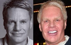 Mike Jeffries Plastic Surgery Before and After