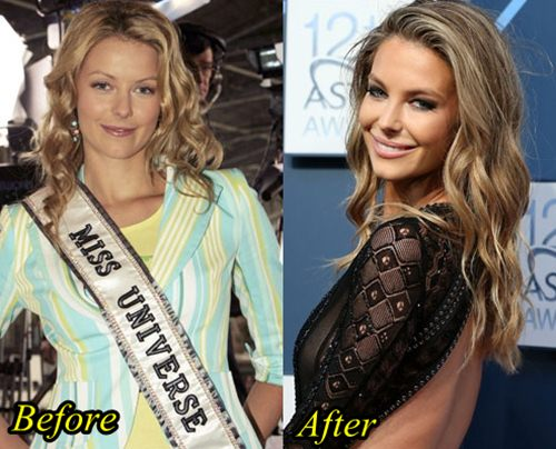 Miss Universe, Jennifer Hawkins Plastic Surgery Before and After