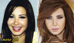Nancy Ajram Plastic Surgery Nose job