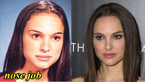 Natalie Portman Plastic Surgery Nose Job
