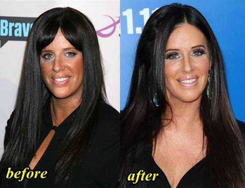 Patti stanger before plastic surgery