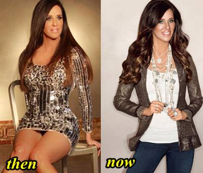 Patti Stranger Plastic Surgery