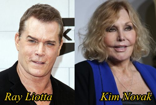 Ray Liotta and Kim Novak Plastic Surgery Gone Wrong