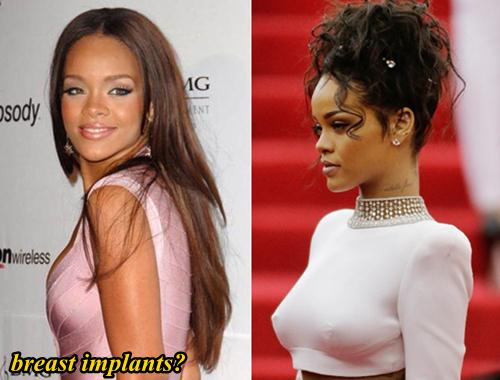 Rihanna Plastic Surgery Breast Implants