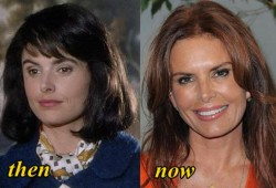 Roma Downey Plastic Surgery