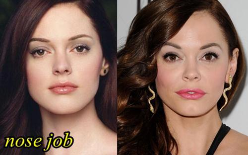 Rose McGowan Plastic Surgery Nose Job