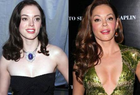 Rose Mcgowan Plastic Surgery Breast Implants