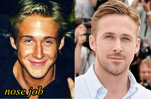 Ryan Gosling Plastic Surgery Before And After Nose Job