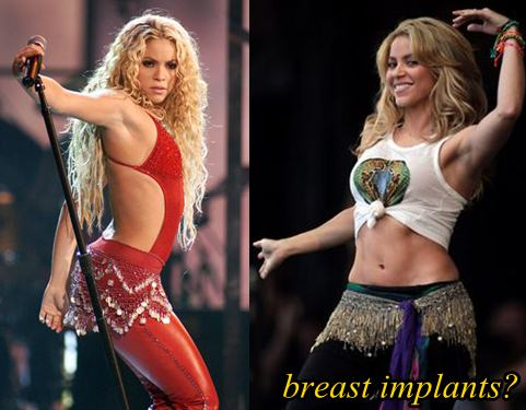 Shakira Plastic Surgery Breast Implants