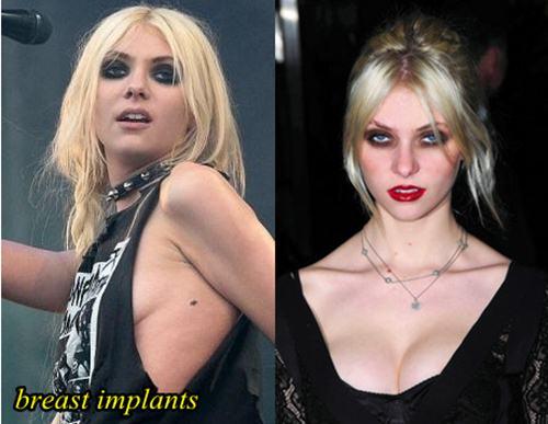 Taylor Momsen Plastic Surgery Boob Job