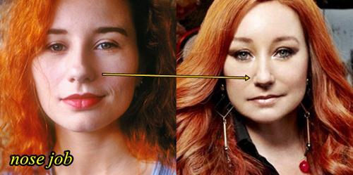 Tori Amos Plastic Surgery Nose Job