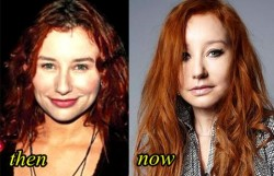 Tori Amos Plastic Surgery Before and After Picture