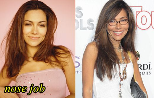 Vanessa Marcil Plastic Surgery Nose Job