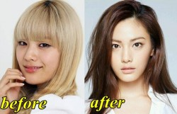 After School Nana Plastic Surgery Before and After