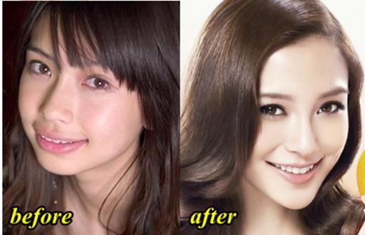 Angelababy Plastic Surgery