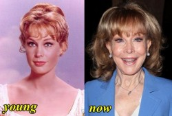 Barbara Eden Plastic Surgery Before and After