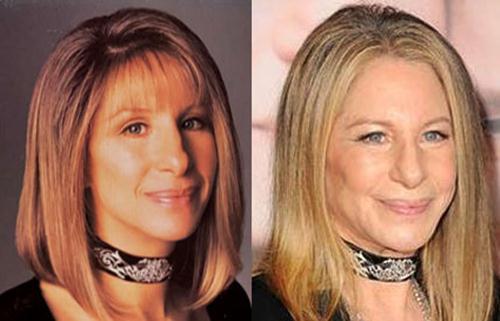 Barbra Streisand Plastic Surgery Nose job