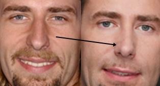 Chad Kroeger Nose Job
