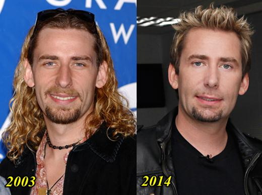 Chad Kroeger Plastic Surgery Before and After