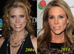 Cheryl Hines Plastic Surgery Before and After