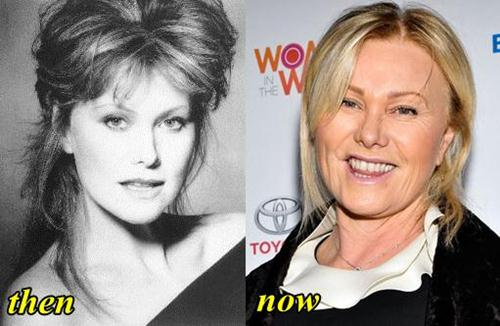Deborra Lee Furness Plastic Surgery Before and After