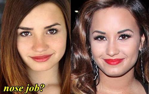 Demi Lovato Before and After Nose Job