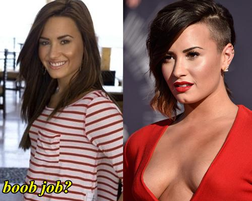 Demi Lovato Plastic Surgery Breast Implants