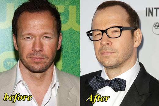 Donnie Wahlberg Plastic Surgery Before and After
