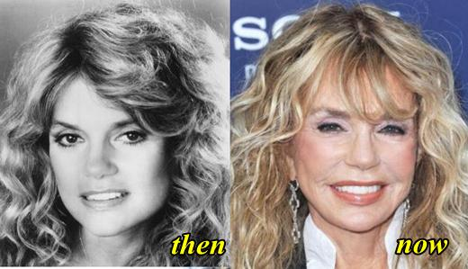 Dyan Cannon Plastic Surgery Before and After