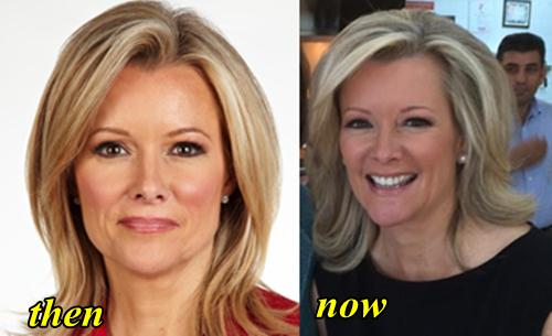 Gerri Willis Plastic Surgery Before and After