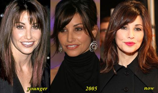 Gina Gershon Plastic Surgery Before and After