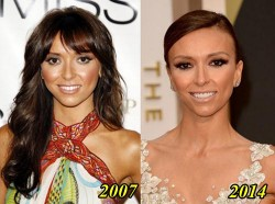 Giuliana Rancic Plastic Surgery Before and After