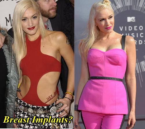 Gwen Stefani Breast Implants