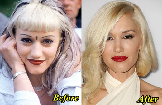 http://www.plasticsurgeryhits.com/wp-content/uploads/2014/11/Gwen-Stefani-Plastic-Surgery-Before-and-After.jpg